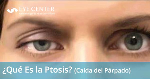 ¿Qué Es la Ptosis?