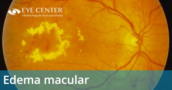 ¿Qué es un edema macular?