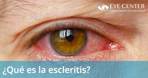 ¿Qué es la escleritis?