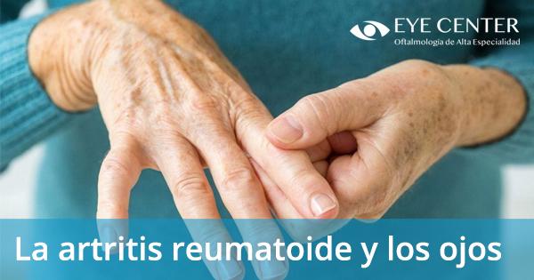 La artritis reumatoide y sus ojos