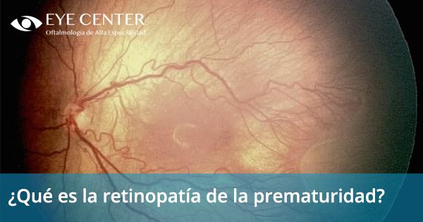 ¿Qué es la retinopatía de la prematuridad?