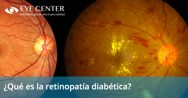 ¿Qué es la retinopatía diabética?