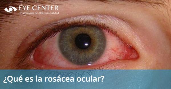 ¿Qué es la rosácea ocular?