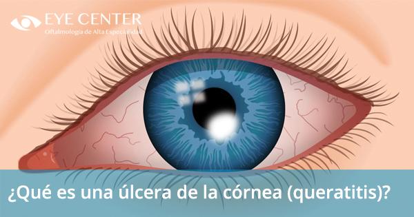 ¿Qué es una úlcera de la córnea (queratitis)?